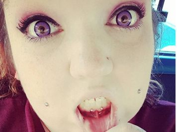 Lip piercing infection