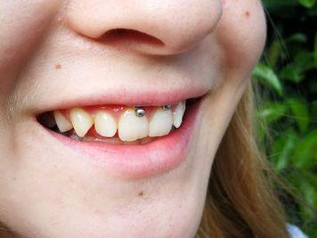 smiley frenulum piercing