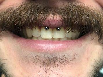 smiley piercing guys