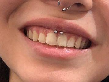 smiley piercing procedure