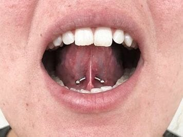 tongue frenulum piercing risks